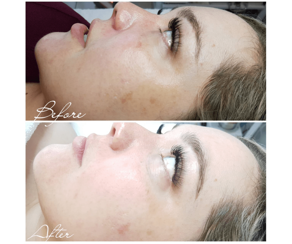 TESTED: SL Laser Black Diamond Facial